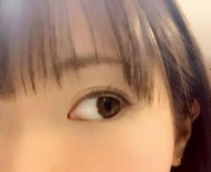 紫外線で目が日焼けするの?病気にもなるの?対策方法は?